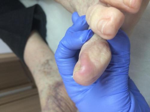Wrastające paznokcie,, leczenie wrastających paznokci, podolog Szczecin, Anna Gralińska, gabinet podologiczny, centrum zdrowej stopy
