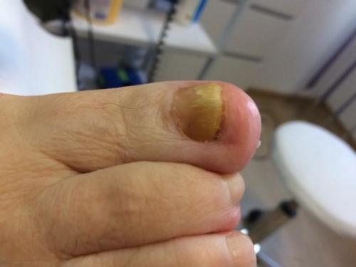 Grzybica paznokci, leczenie grzybicy, gabinet podologiczny, podolog Szczecin, Anna Gralińska
