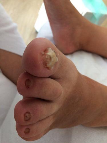 Wkręcające paznokcie, leczenie wkręcających paznokci,podolog, Szczecin, Anna Gralińska, Gabinet podologiczny, centrum zdrowych stóp